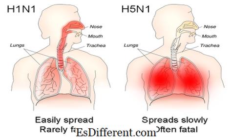 Unterschied zwischen Grippe und Magen-Grippe